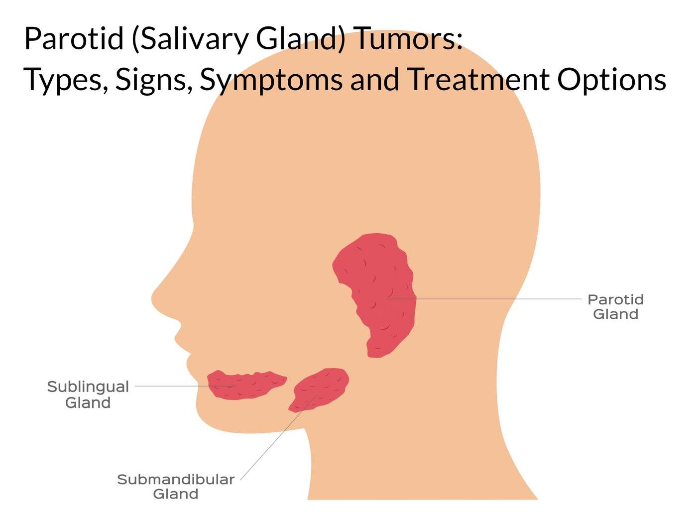 parotid salivary gland tumors houston texas