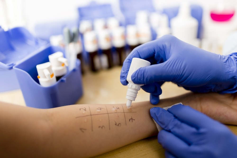 skin allergy tests in houston