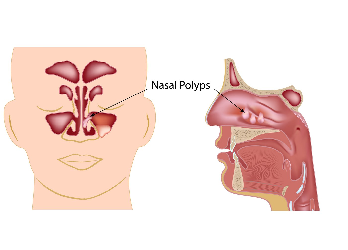 what are nasal polyps houston ent and allergy